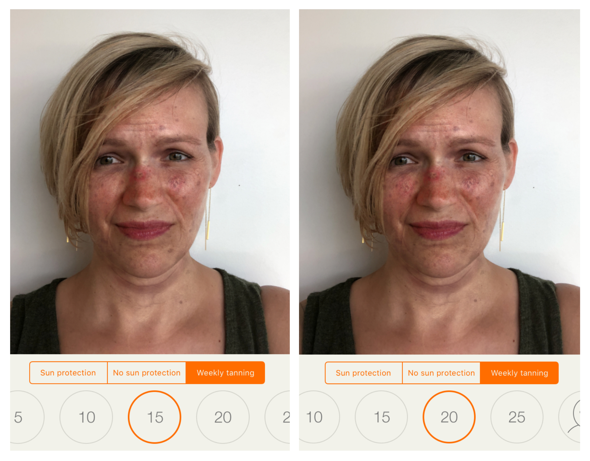 This Terrifying App Shows You What Not Using Sunscreen Will